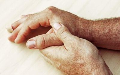 13 Hausmittel gegen geschwollene Hände
