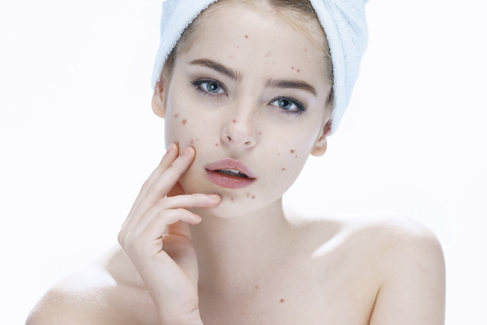 Ugly problem skin girl. Woman skin care concept / photos of european girl on white background