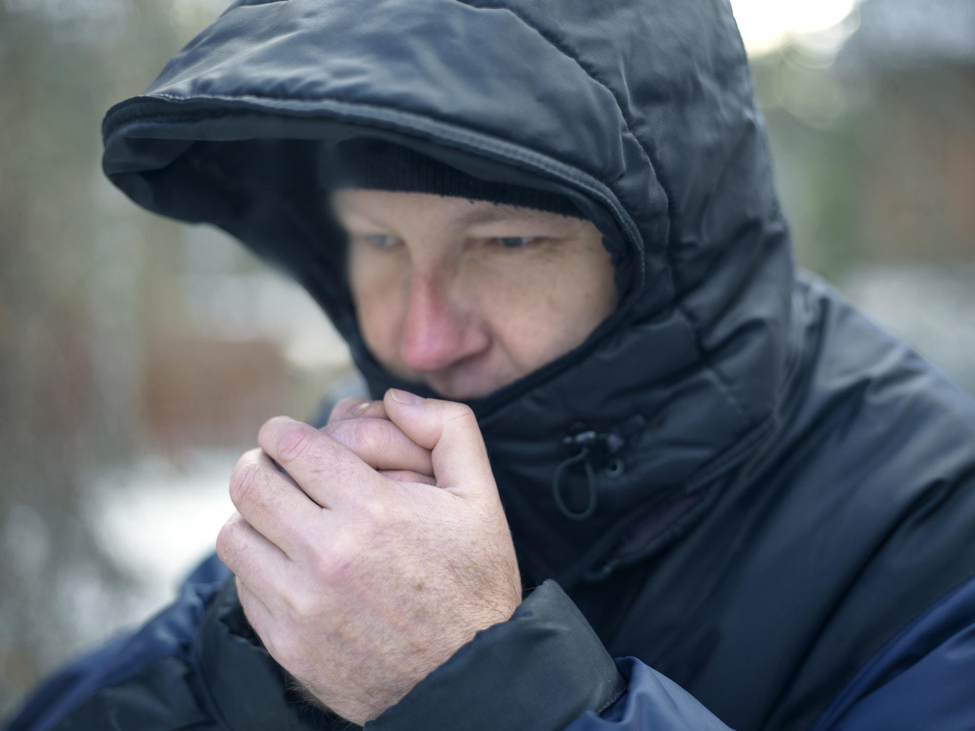 Geschwollene Hände durch Kälte